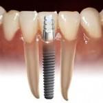 Implant_rang