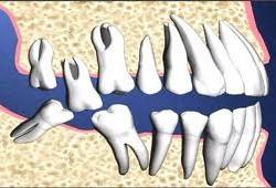 Hình ảnh bệnh Răng lệch lạc, chữa thế nào?