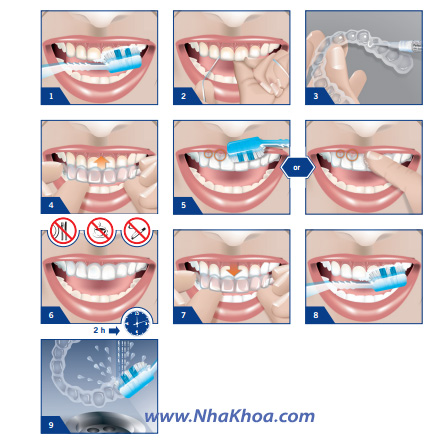 Hướng dẫn tẩy trắng răng tại nhà