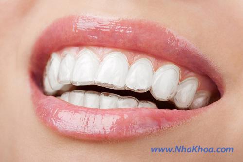 Invisalign - Niềng răng không mắc cài