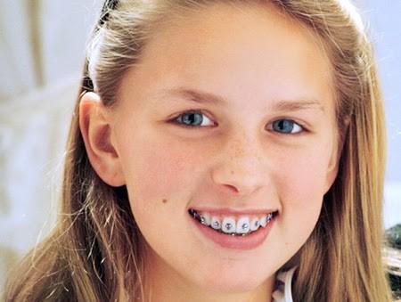 Niềng răng cho trẻ em cho hiệu quả nhanh hơn