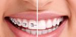 Niềng răng - Mắc cài mặt trong và mặt ngoài