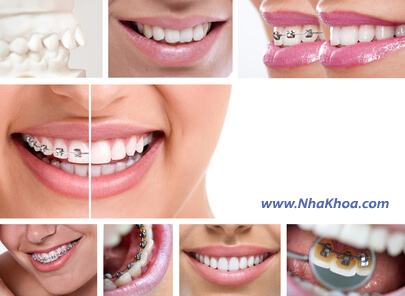 Các loại mắc cái trong niềng răng