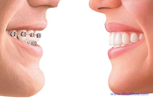 Niềng răng mắc cài và Niềng răng không mắc cài