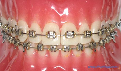 Niềng răng-Mắc cài kim loại, loại buộc thun
