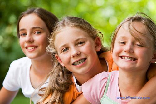 Niềng răng mất bao lâu ?
