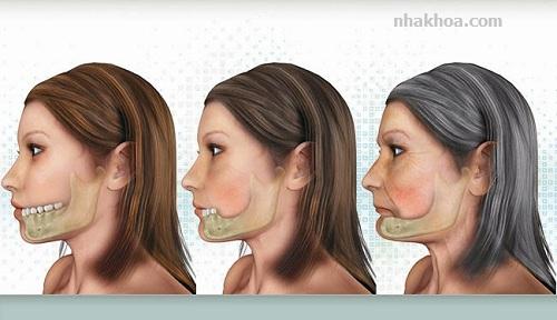 Tiêu xương làm khuôn mặt bạn trông già hơn