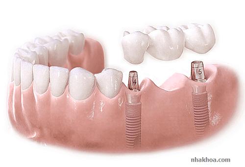 Hình ảnh minh họa cầu răng sứ