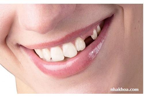 Mất răng sẽ khiến bạn mất tự tin trong cuộc sống hàng ngày