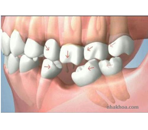 Răng có xu hướng nghiêng về phía khoảng trống do răng mất tạo thành