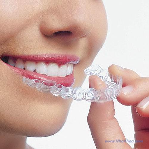 Tẩy trắng răng tại nhà với máng tẩy