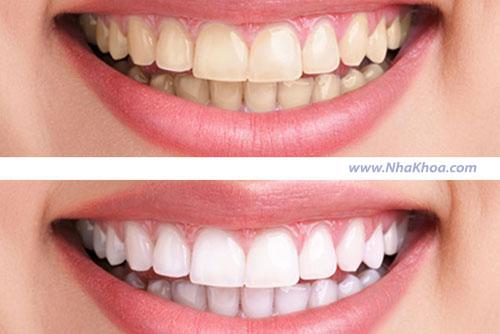 Lưu ý trước và sau khi tẩy trắng răng