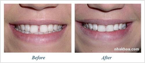 Với trường hợp răng thưa phương pháp trám răng cũng rất hiệu quả