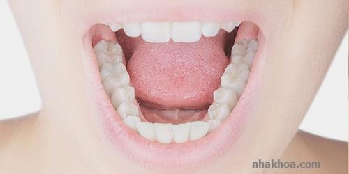 Trám răng là giải pháp nha khoa hiệu quả để lấy lại sự tự tin cho bạn