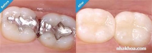 Trám răng trực tiếp