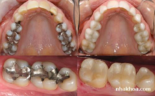 Vết trám răng trông hoàn toàn tự nhiên