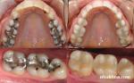 Trám răng điều trị siêu răng
