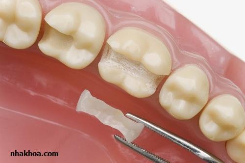 Trám răng gián tiếp (Inlay/ Onlay)