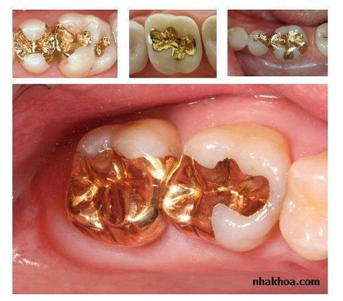 Kim loại quý cũng chủ yếu sử dụng để trám răng hàm