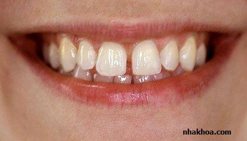 Răng thưa là trường hợp khá phổ biến và có thể khắc phục nhờ trám răng