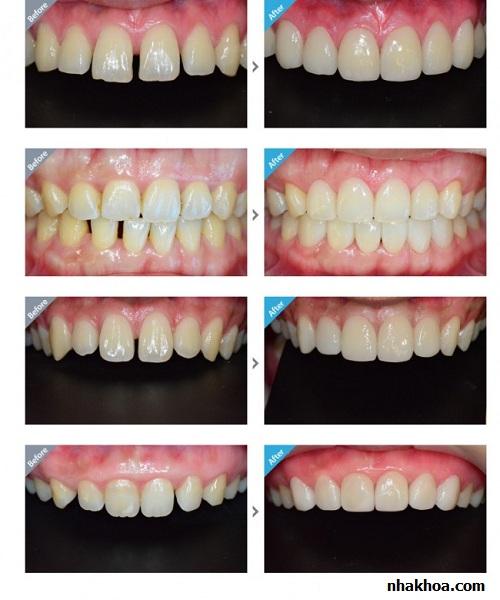 Các trường hợp răng thưa điều trị thành công bằng trám răng thẩm mỹ