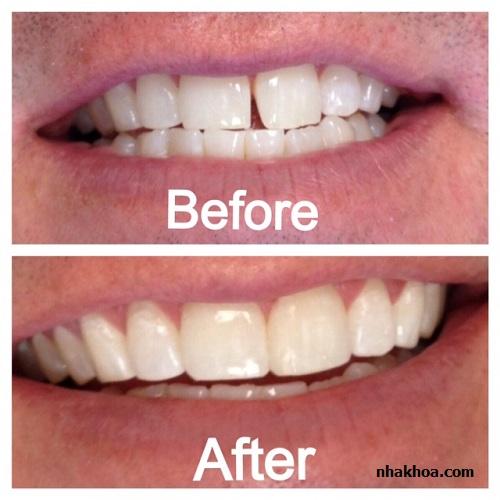 Trám răng thẩm mỹ ngày càng được nhiều người tin chọn