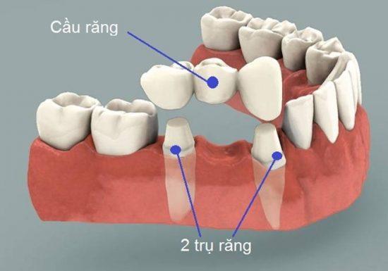 Một cầu răng sứ gồm 3 răng